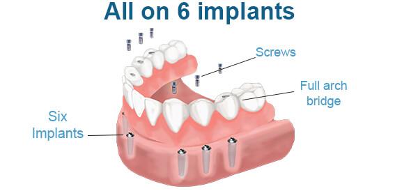 https://letsmedi.com/wp-content/uploads/2018/02/all-on-6-implant_01.jpg