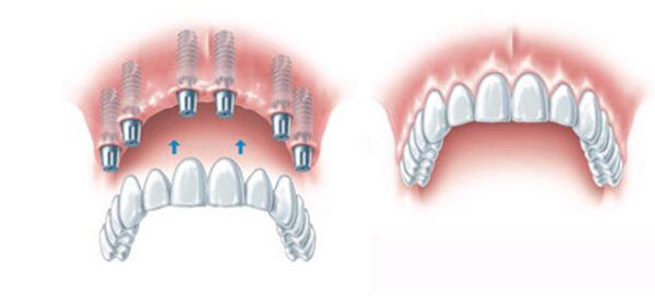 https://letsmedi.com/wp-content/uploads/2018/02/all-on-6-implant_02.jpg