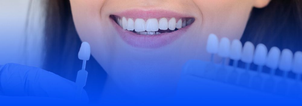 veneers turkey cost, packages and type based prices