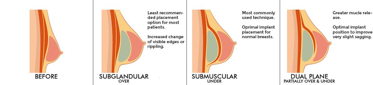 https://letsmedi.com/wp-content/uploads/2020/11/Breast-implant.jpg