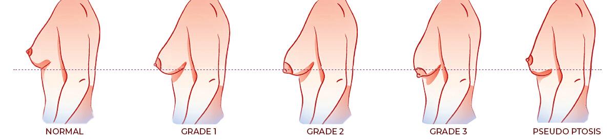 https://letsmedi.com/wp-content/uploads/2020/11/Breast-lift-kullanium-bilgisi-1.jpg