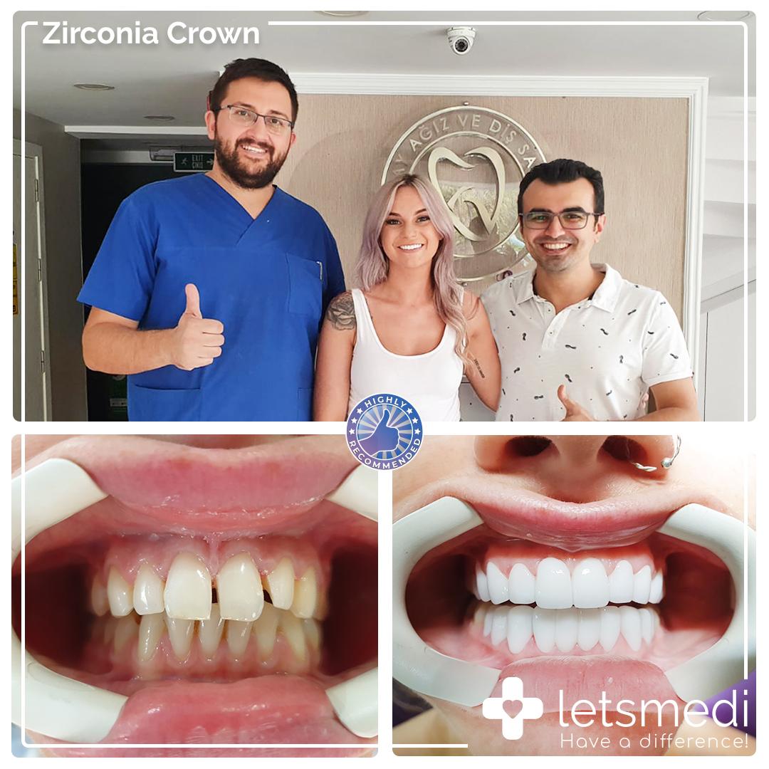 https://letsmedi.com/wp-content/uploads/2020/11/Zirconia-Crown-Nicole.jpg