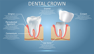 https://letsmedi.com/wp-content/uploads/2020/12/Dental-Crown_01.jpg