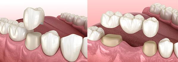 https://letsmedi.com/wp-content/uploads/2020/12/Dental-Crown_02.jpg