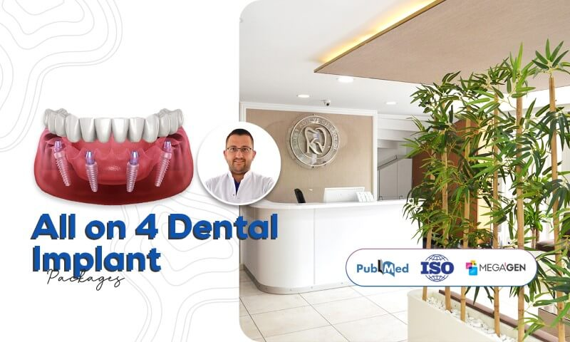 All On 4 Dental Implant - Koray Dental Clinic