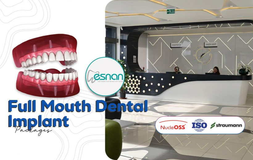 Full Mouth Dental Implant - Esnan Dental Clinic