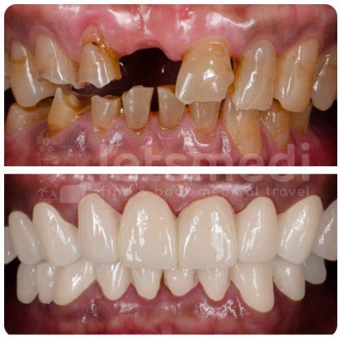Dental Bridge-1