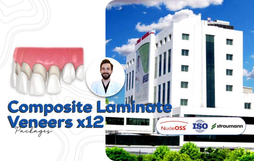 Composite Veneers x12