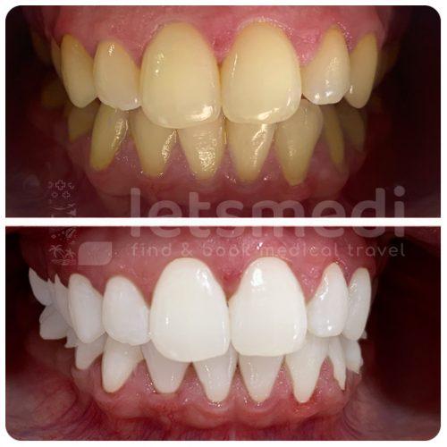 diş beyazlatma-1