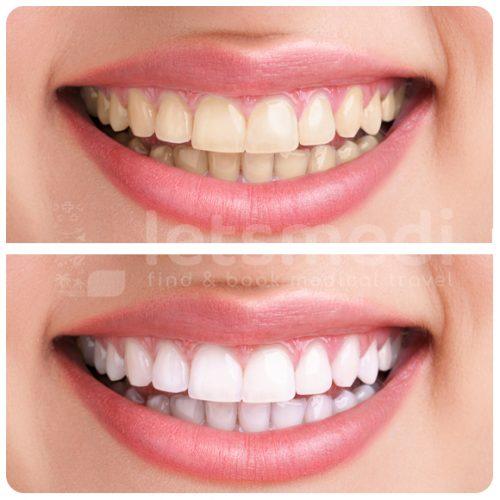 diş beyazlatma-2