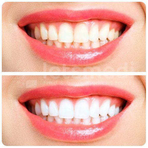 diş beyazlatma-3