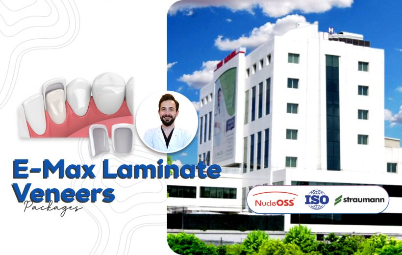 E-Max Laminate Veneers