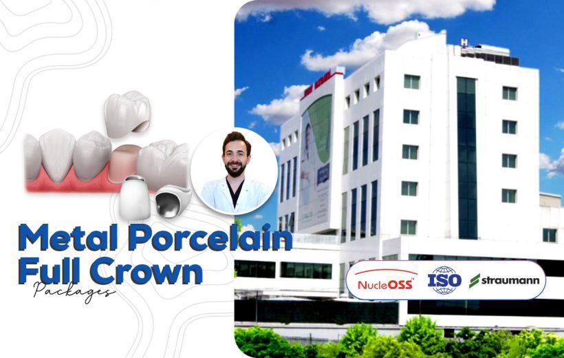 Metal Porcelain Full Crown