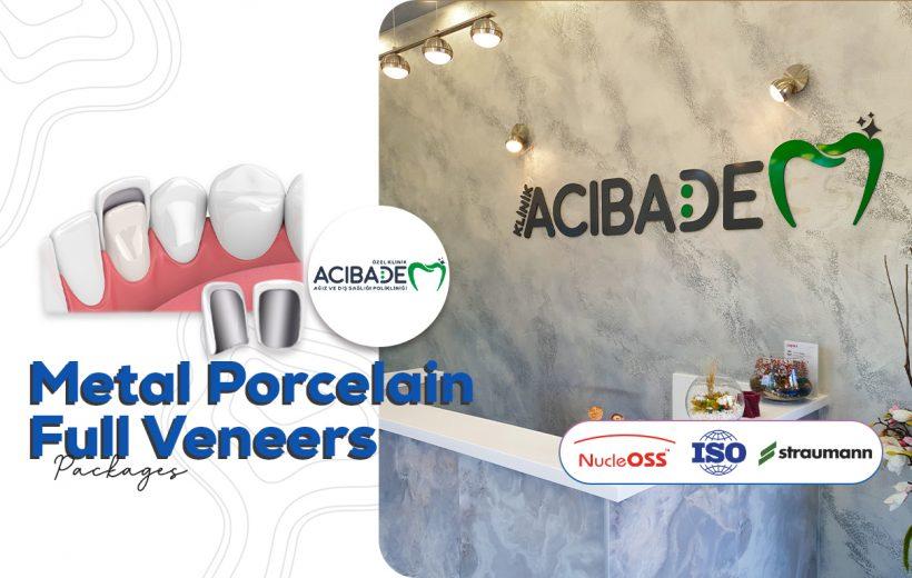 Metal Porcelain Full Veneers