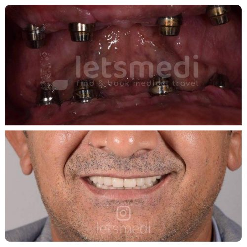 all on 4 dental implants turkey before after