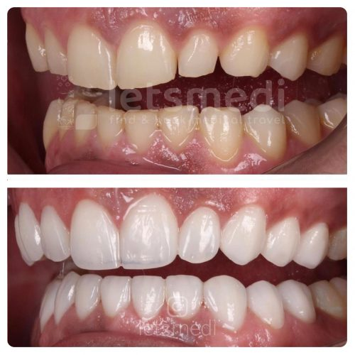 composite veneers before and after turkey