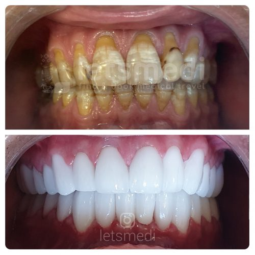 dental crown before and after pictures