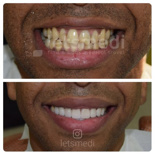 dental crown before and after turkey