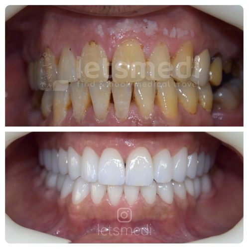 dental crown pictures before and after