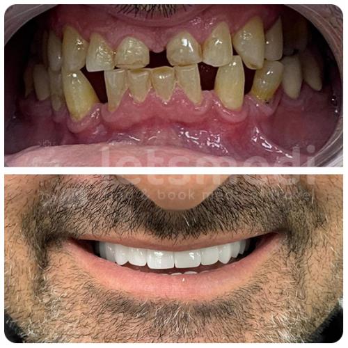 dental implants turkey before after