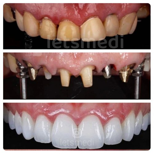 dental implants turkey istanbul before after