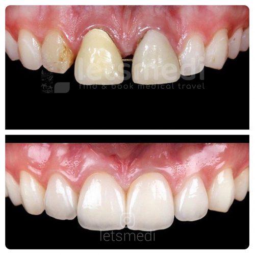 dental veneers before and after turkey