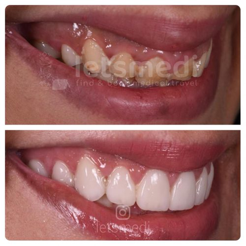 front dental crown before and after