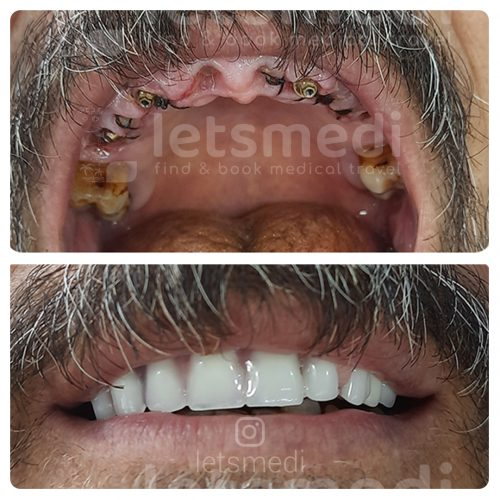 full moth dental implants istanbul turkey before after