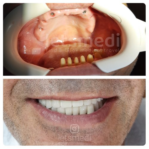 full mouth dental implants turkey before after