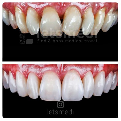 porcelain veneers before and after turkey istanbul