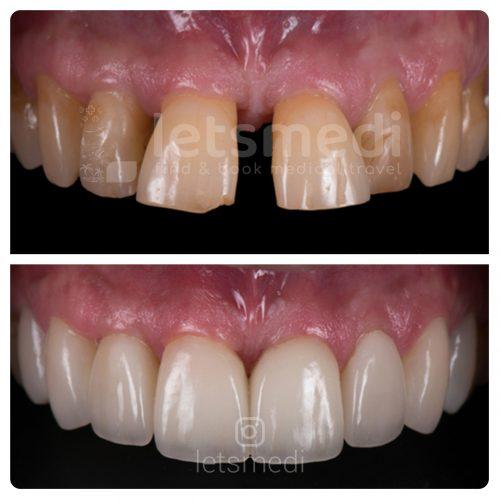 teeth veneers before and after turkey