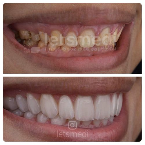 veneers before and after istanbul turkey