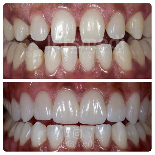 veneers before and after picture turkey